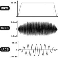 Graphical Representation of tDCS tACS and tRNS current wave forms